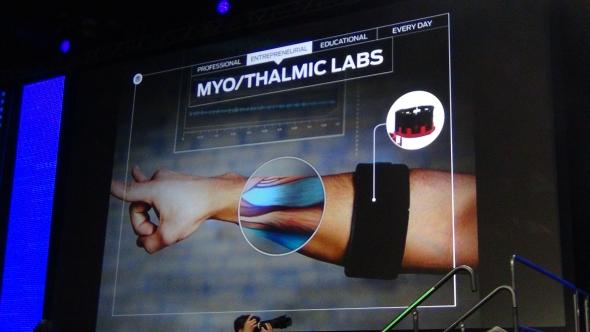 Při vývoji náramku Myo pomáhaly aditivní technologie výroby. Foto: Marek Pagáč