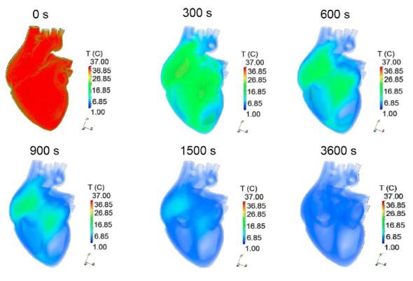 Simulace zchlazení srdce