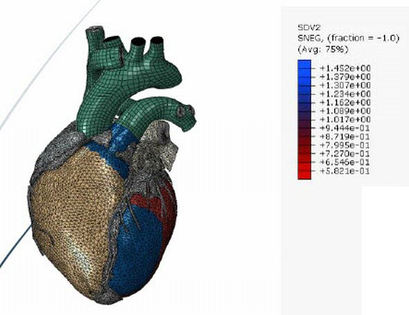 Simulace infarktu myokardu