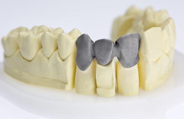 3D tisk kovů se s úspěchem využívá v medicíně při výrobě dentálních náhrad